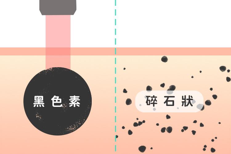 皮秒雷射淨膚雷射比較1淨膚